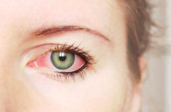 Os mitos e verdades sobre a Síndrome do olho seco.