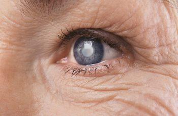 Afinal, o que é o Glaucoma? Tem Cura?