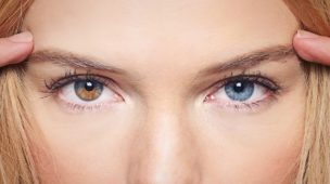 heterocromia cada olho uma cor