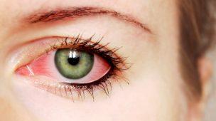 ar condicionado x olho seco