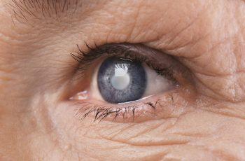 O que é Degeneração Macular Relacionada à Idade ou DMRI?