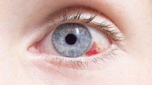 mancha no olho