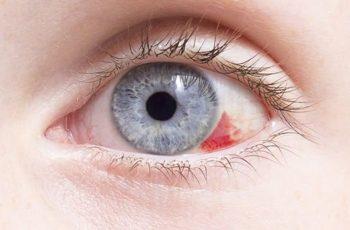 Mancha vermelha no olho: O que pode ser?